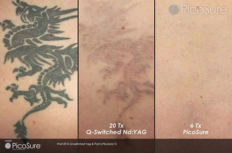 Faces of South Tampa | Cynosure PicoSure Tattoo Removal | Laser ...